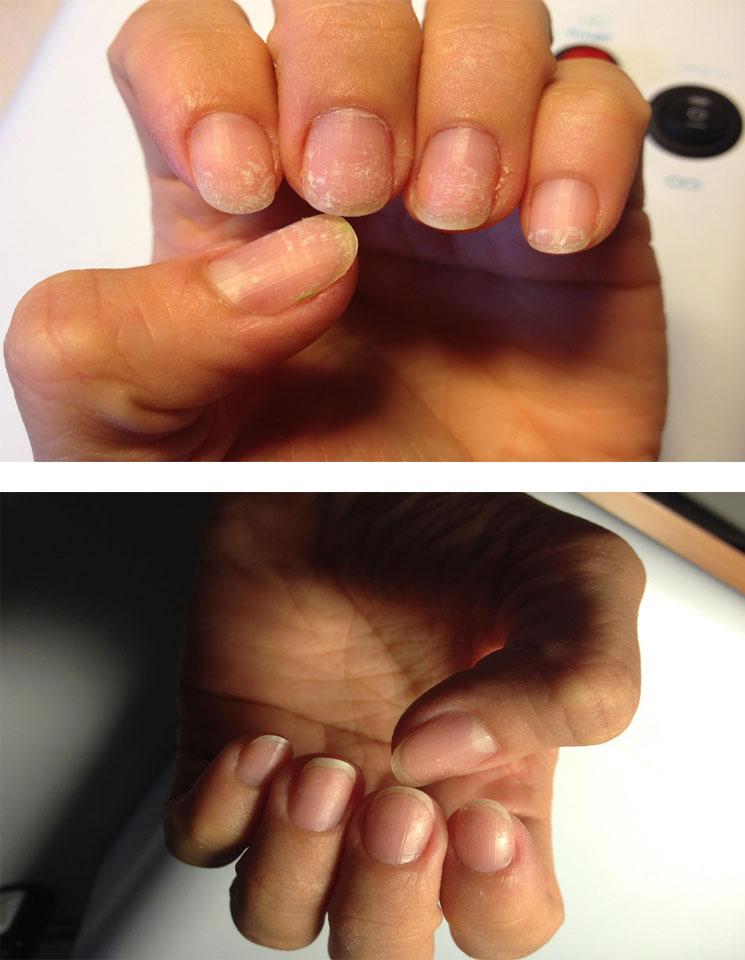 Маникюр для ногтей с грибком